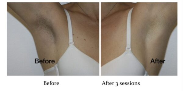 Before & After Pink Intimate System