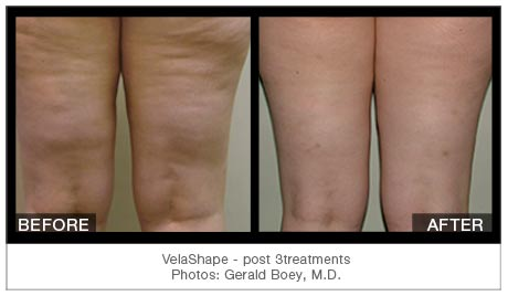 Cellulite Treatment Richmond Hill Get Rid Of Cellulite